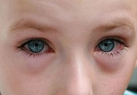 Отек глаз при конъюнктивите у ребенка