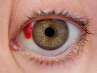 Лопнувший капилляр в глазу