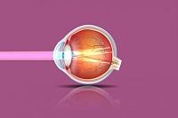 Глаз в разрезе