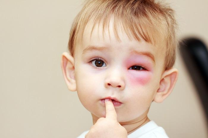 Укусила мошка в глаз: чем снять отек и опухоль - hloptarakan