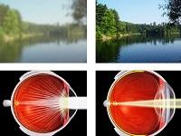 Фиксирование нечеткого изображение сетчаткой глаза
