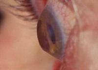 Хрусталик глаза