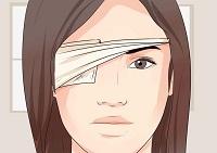 Медицинская повязка на глаз