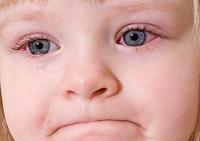 Заболевание конъюнктивит у ребенка