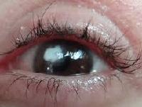 Бельмо на глазу