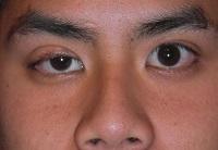 Миастения глаза