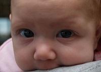 Конъюнктивит у новорожденных