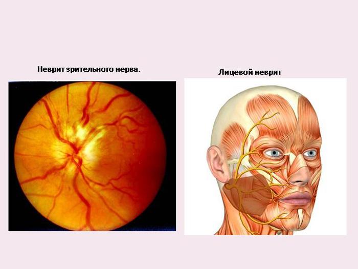 Воспаление глазного нерва