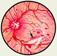 Ретробульбарный неврит