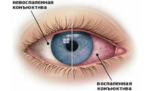 Белый налет в уголках глаз у взрослых