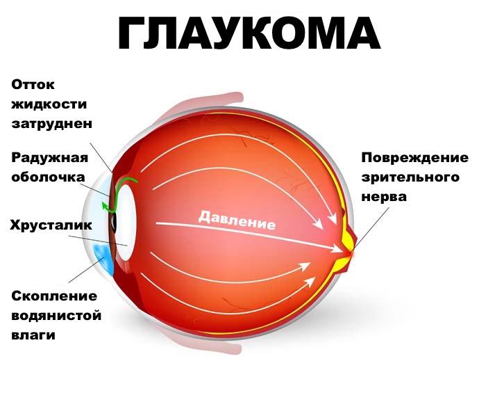 Рисунок глаукомы