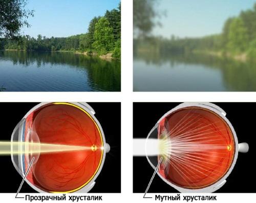 Катаракта и мутное зрение
