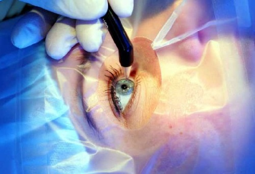 реабилитация после лазерной операции на глаза