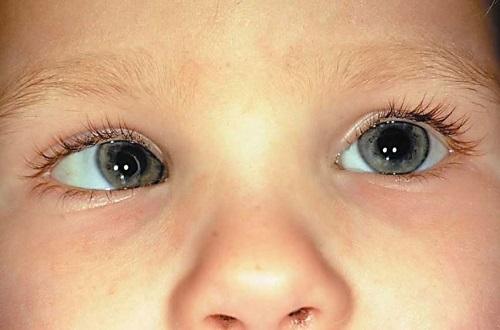Лицо ребенка