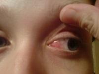 Воспаление слизистой глаза