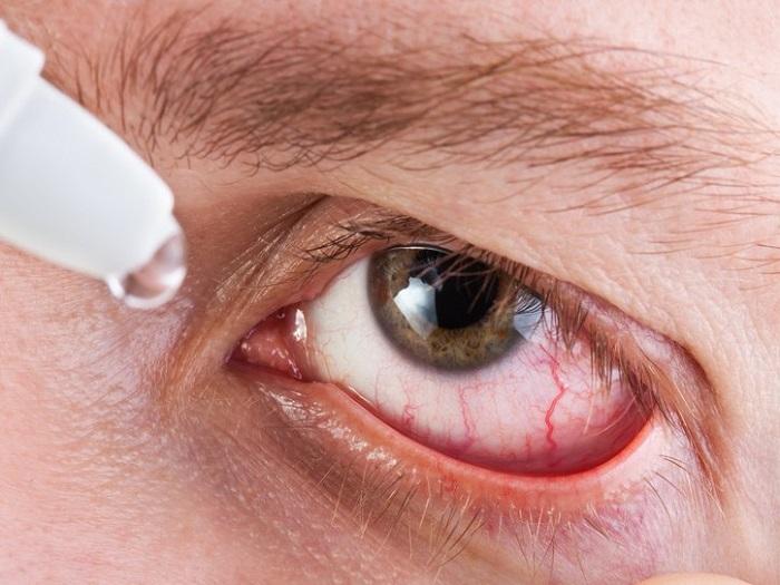 Капли для глаз от воспаления