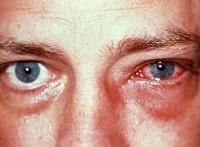 Инфекционный конъюнктивит