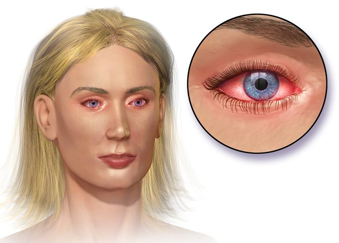 Ухудшение зрения после коньюктивита - Лечение глаз
