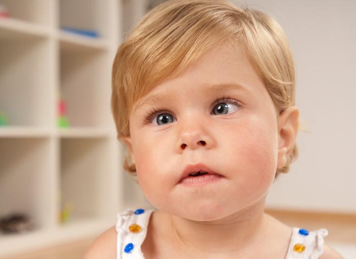 Ребенок с косоглазием