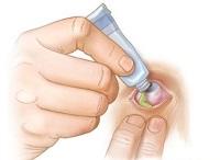 Закладывание глазной мази за веко