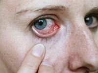 Симптомы глазных болезней
