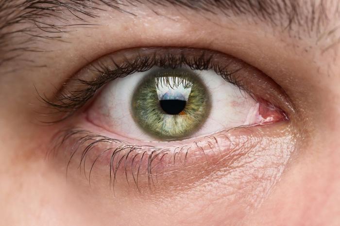 Воспаление глаз симптомы и лечение — Красивое лицо