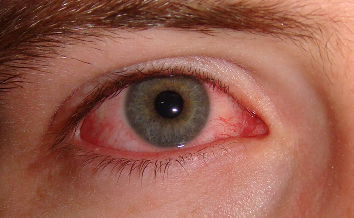 Хронический конъюнктивит - причины и лечение