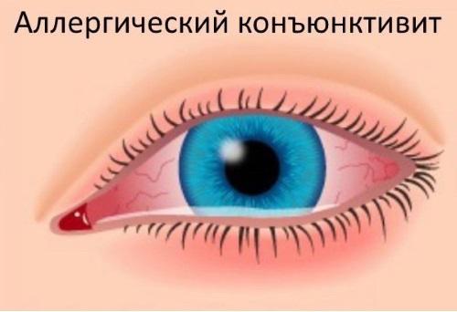 Рисунок глаза