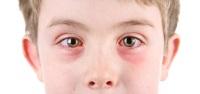 Мальчик с больными глазами