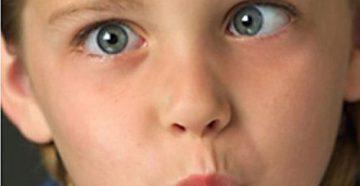 У ребенка косят глаза