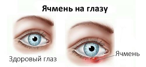 Два глаза