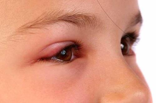 Опух глаз после укуса комара